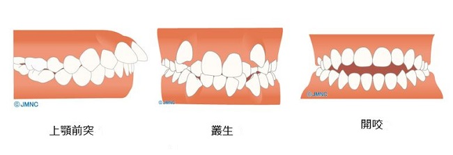出典:http://www.kyousei-shika.net/