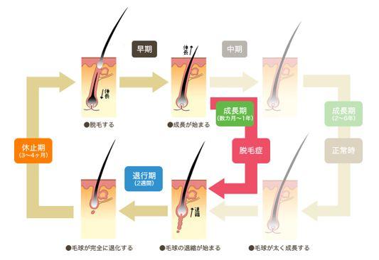 出典:http://alopecia.funa-biyou.com/