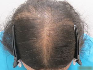 出典:http://www.hairmedical.com/
