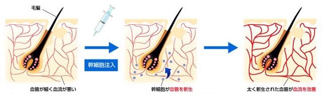 出典:https://www.mouhatsu-saisei.com/