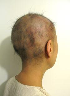 出典:http://alopecia945.blog.fc2.com/