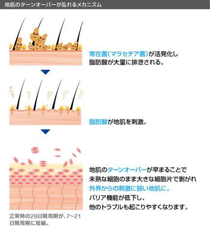 出典:http://hscare.jp/scalplabo/