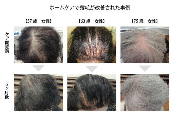 出典:http://www.haircare-nayami-soudan.jp/
