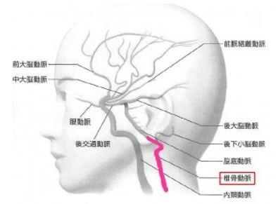 出典:http://www.web-neurosurgery.com/