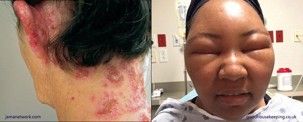 出典:https://naturvital.co.nz/blog/1274-ppd-hair-dye-allergic-reaction