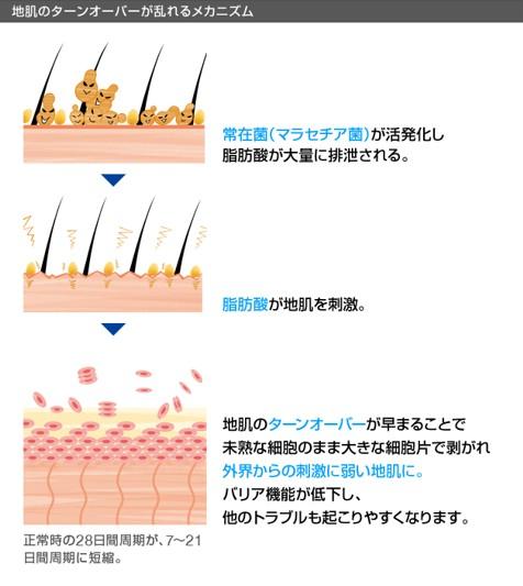 出典:https://hscare.jp/scalplabo/