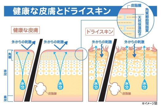 出典:http://www.yoshida-cl.com/