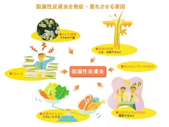 出典:https://www.saginomiya-hifuka.com/