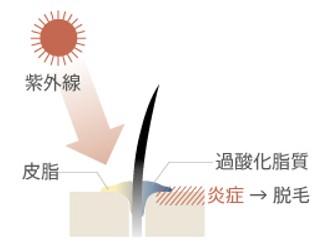 出典:http://www.shokumou-hairport.jp/