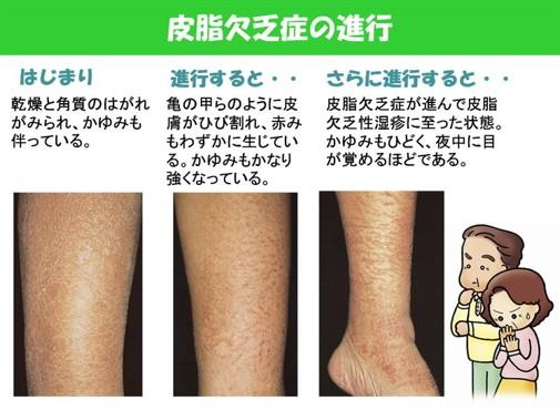 出典:https://ksclinic.exblog.jp/