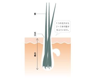 出典:http://www.kaminonayami119.com/