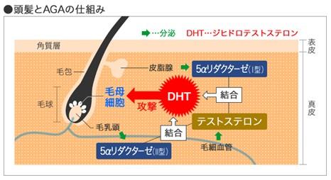 出典:http://aga-clinic-experience.jp/