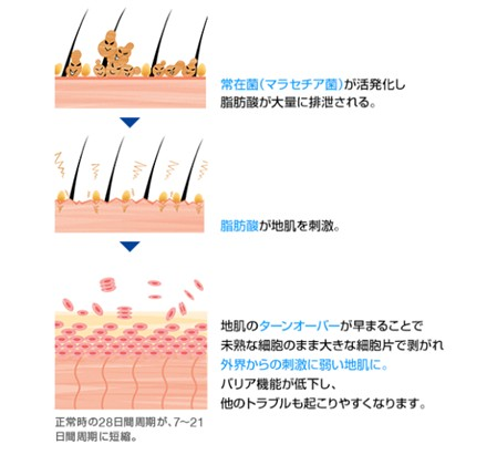 出典:https://hscare.jp/ja-jp/
