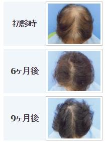 ※ヘアメディカル 62歳主婦の治療症例 出典:https://www.hairmedical.com/